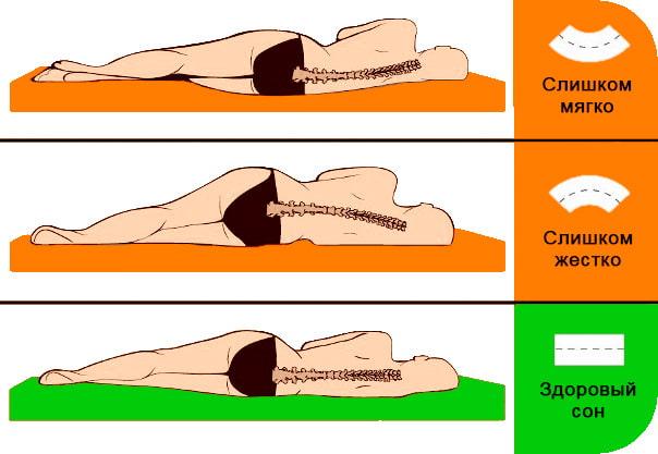 Жесткость ортопедических матрасов